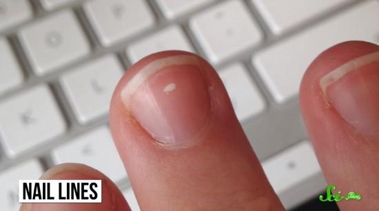 爪に表れる白い線は病気のサイン というのは本当か ログミーbiz