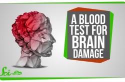 本当は恐ろしい脳しんとう AI活用や血液検査は効果があるか