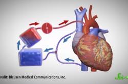多くの命を救った人工心肺は、どんな進化を遂げてきたか