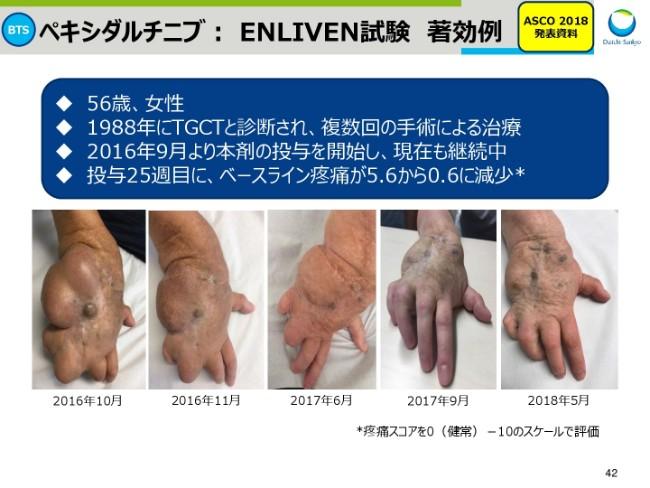 daiichisankyo20191q-042